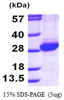 RAB11A Protein