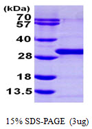 RAB21 Protein