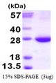 RAB31 Protein