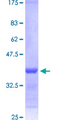 RARA / RAR Alpha Protein - 12.5% SDS-PAGE Stained with Coomassie Blue.