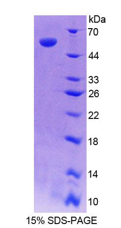 RARRES1 Protein - Recombinant Retinoic Acid Receptor Responder 1 By SDS-PAGE
