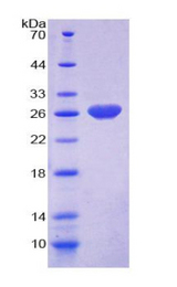 RASA1 Protein - Recombinant  Ras GTPase Activating Protein 1 By SDS-PAGE