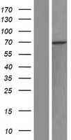 RBM28 Protein - Western validation with an anti-DDK antibody * L: Control HEK293 lysate R: Over-expression lysate