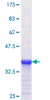 RBP2 / CRBPII Protein - 12.5% SDS-PAGE Stained with Coomassie Blue.