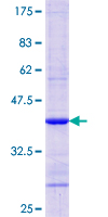 RBP4 Protein - 12.5% SDS-PAGE Stained with Coomassie Blue.