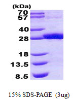 RDHE2 / SDR16C5 Protein