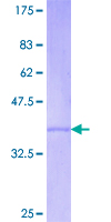 REC8 Protein - 12.5% SDS-PAGE Stained with Coomassie Blue.
