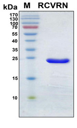 Recoverin Protein - SDS-PAGE under reducing conditions and visualized by Coomassie blue staining