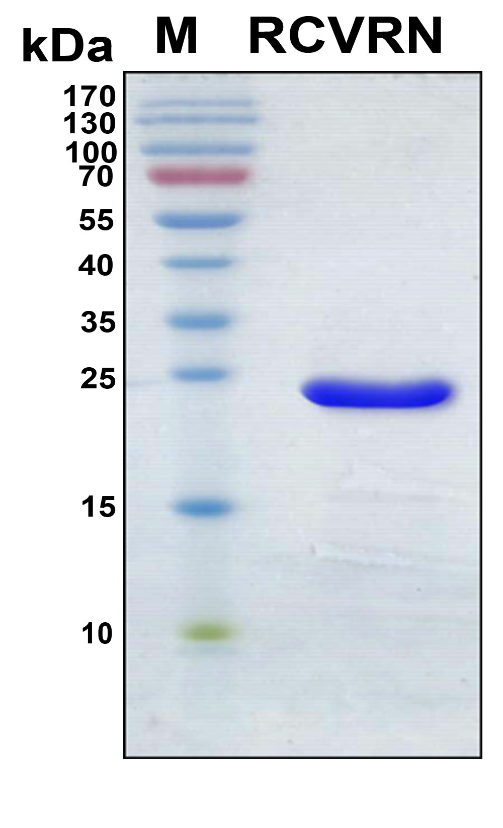 SDS-PAGE under reducing conditions and visualized by Coomassie blue staining