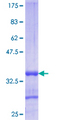 Recoverin Protein - 12.5% SDS-PAGE Stained with Coomassie Blue.