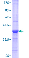 REG1A Protein - 12.5% SDS-PAGE Stained with Coomassie Blue.