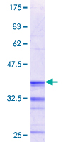 RGN / Regucalcin Protein - 12.5% SDS-PAGE Stained with Coomassie Blue.