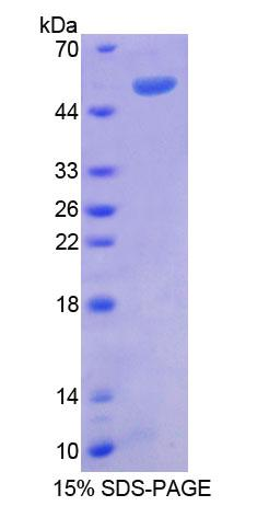 RGS1 Protein - Recombinant  Regulator Of G Protein Signaling 1 By SDS-PAGE