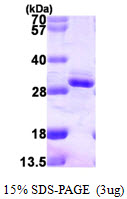 RGS2 Protein