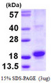 RGS21 Protein