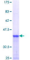 RHBDL2 / RRP2 Protein - 12.5% SDS-PAGE Stained with Coomassie Blue.