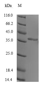 Human Rhinovirus A VP1 Protein - (Tris-Glycine gel) Discontinuous SDS-PAGE (reduced) with 5% enrichment gel and 15% separation gel.