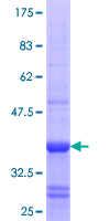 RHOBTB3 Protein - 12.5% SDS-PAGE Stained with Coomassie Blue.