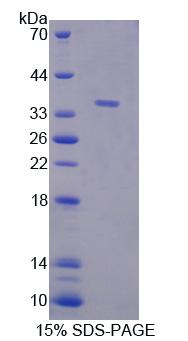 RIPK1 / RIP Protein - Recombinant  Receptor Interacting Serine Threonine Kinase 1 By SDS-PAGE
