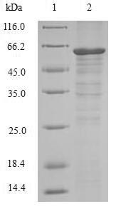 RIPK3 / RIP3 Protein - (Tris-Glycine gel) Discontinuous SDS-PAGE (reduced) with 5% enrichment gel and 15% separation gel.