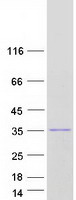 RNASEH2B Protein - Purified recombinant protein RNASEH2B was analyzed by SDS-PAGE gel and Coomassie Blue Staining