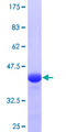 RNF139 / TRC8 Protein - 12.5% SDS-PAGE Stained with Coomassie Blue.