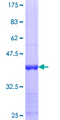 RORC / ROR Gamma Protein - 12.5% SDS-PAGE Stained with Coomassie Blue.