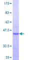 RPL36AL Protein - 12.5% SDS-PAGE Stained with Coomassie Blue.