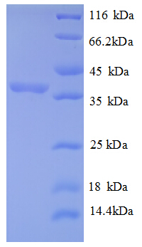 RPLP2 Protein
