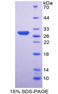 RPP40 / Ribonuclease P Protein - Recombinant Ribonuclease P By SDS-PAGE