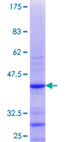 RPS27A Protein - 12.5% SDS-PAGE Stained with Coomassie Blue.