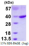 RPS3A / Ribosomal Protein S3A Protein