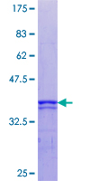 RPS6KA5 / MSK1 Protein - 12.5% SDS-PAGE Stained with Coomassie Blue.