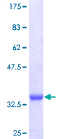 S100A8 / MRP8 Protein - 12.5% SDS-PAGE Stained with Coomassie Blue.