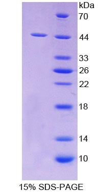SCARA5 Protein - Recombinant  Scavenger Receptor Class A Member 5 By SDS-PAGE