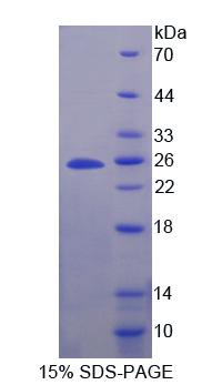 SCG5 / 7B2 Protein - Recombinant  Secretogranin V By SDS-PAGE