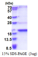 SCP2D1 / C20orf79 Protein