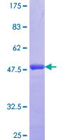 SDC2 / Syndecan 2 Protein - 12.5% SDS-PAGE Stained with Coomassie Blue.