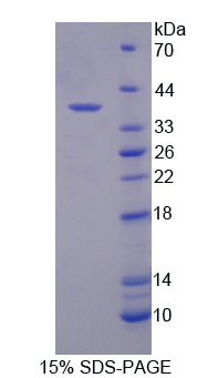 SDCBP2 / Syntenin 2 Protein - Recombinant  Syntenin 2 By SDS-PAGE