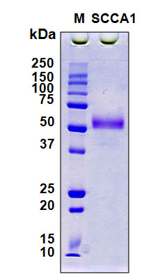 SERPINB3 Protein - SDS-PAGE under reducing conditions and visualized by Coomassie blue staining