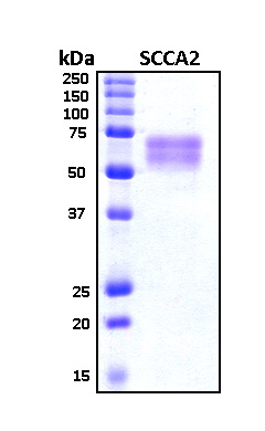 SERPINB4 / SCCA1+2 Protein - SDS-PAGE under reducing conditions and visualized by Coomassie blue staining