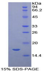 SERPING1 / C1 Inhibitor Protein - Recombinant  Complement 1 Inhibitor By SDS-PAGE