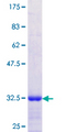 SGCD / Delta-Sarcoglycan Protein - 12.5% SDS-PAGE Stained with Coomassie Blue.