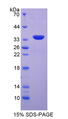 SGK3 Protein - Recombinant  Serum/Glucocorticoid Regulated Kinase 2 By SDS-PAGE