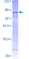 SH2D2A Protein - 12.5% SDS-PAGE of human SH2D2A stained with Coomassie Blue