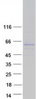 SH2D7 Protein - Purified recombinant protein SH2D7 was analyzed by SDS-PAGE gel and Coomassie Blue Staining