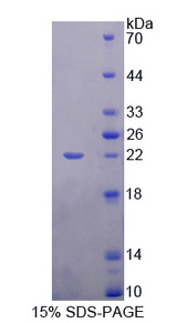 SHBG Protein - Recombinant  Sex Hormone Binding Globulin By SDS-PAGE