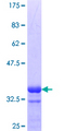 SIN3A Protein - 12.5% SDS-PAGE Stained with Coomassie Blue.