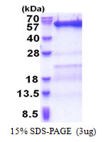 SKD1 / VPS4B Protein