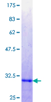 SKIL / SNO / SnoN Protein - 12.5% SDS-PAGE Stained with Coomassie Blue.